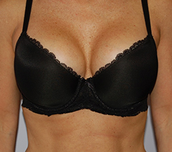 cosmetic breast surgery Philadelphia