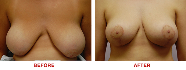 Breast Lift Breast Augmentation Dr. Ted Eisenberg